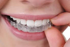 invisalign-inserted